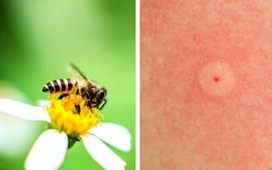 Identifying Bug Bites: How to Figure Out What Bit You