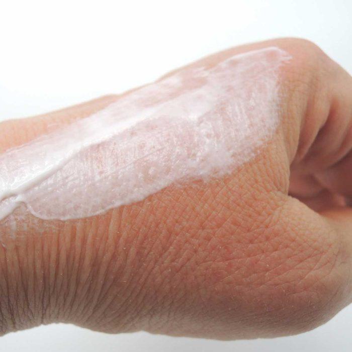 dry skin with moisturizer
