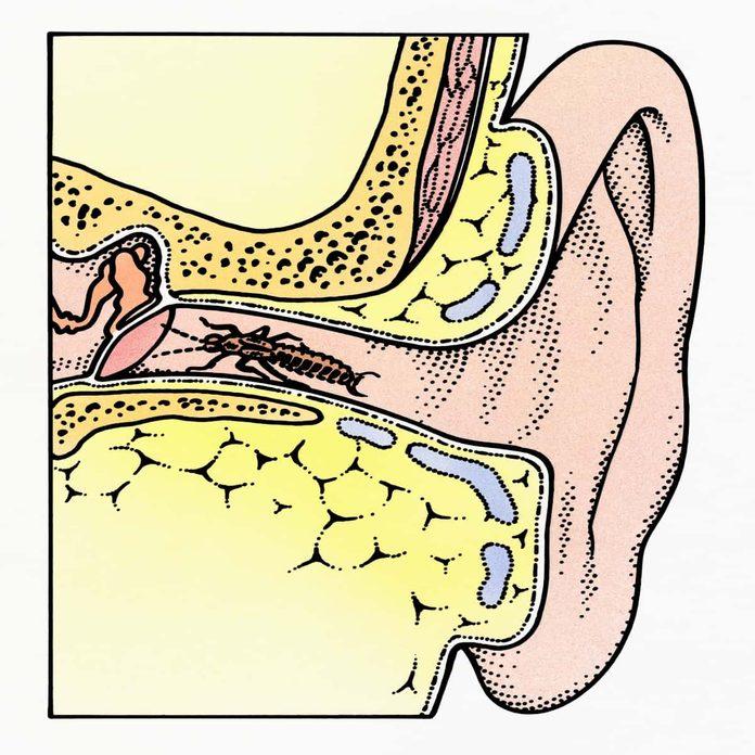 Earwigs in ear
